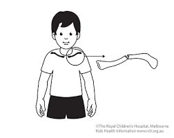 Kids Health Information : Fracture care: clavicle (collar bone)