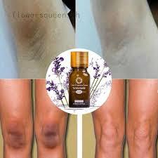 10ml Ultra <b>Brightening Spotless Oil Skin</b> Care Natural Pure Remove ...