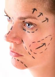 explore plastic surgery dr barry eppleyfat grafting archives a