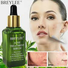 Acne Treatment Serum <b>BREYLEE Tea Tree</b> Clear Skin Serum ...
