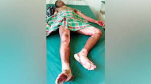 Image result for boy death industrial waste mysore