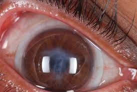 cataract surgery in the keratoconic patient tal raviv md facs
