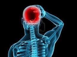 mal di testa curare