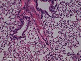 Image result for PEITC cancer