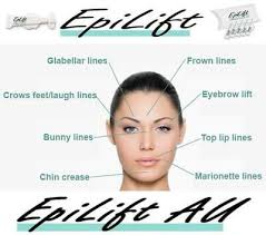 EPILIFT - BEST INSTANT <b>EYELIFT</b> Weddings~Special Occasion NO ...