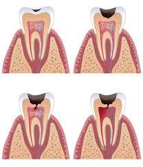لاول لثقوب الاسنان فوائد