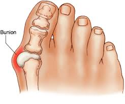 bunion relief picture