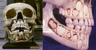 skull Anatomy teeth dentist medicine medical school dental school ... via Relatably.com