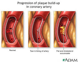 Image result for plaque in arteries
