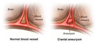 Image result for brain aneurysm rupture