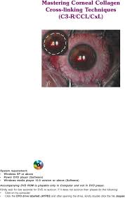 mastering corneal collagen cross linking techniques c r ccl cxl 0 version or above software accompanying dvd rom is playable only in computer and