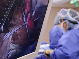<b>Adult</b> Cardiovascular Surgery Earns <b>Top Quality</b> Rating - UAB ...