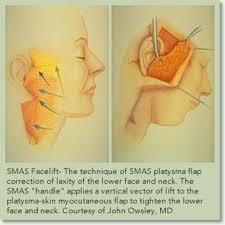 SMAS layer of facelift