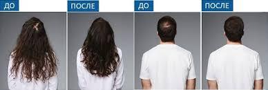 Купить Loreal Serioxyl <b>Цветной спрей-камуфляж для</b> волос
