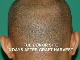 Image result for fue transplant scar
