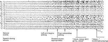 painful generalised clonic and tonic clonic seizures retained case reports
