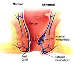 external hemorrhoid treatment