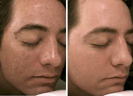 Medial Microdermabrasion Treatment