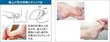 「浮指」の画像検索結果