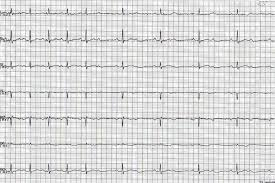 ecg rhythms av block a subtype of second degree av block of second degree av block a 2 1 av block can either be due to a mobitz i or mobitz ii mechanism a longer strip is needed to capture the mechanism