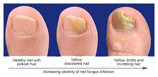 Image result for fungal nail infection africa