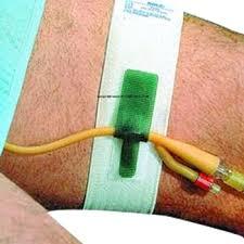 <b>Foley Catheter Holder</b>