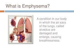 Image result for emphysema