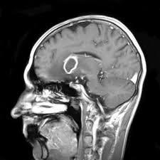 Znalezione obrazy dla zapytania cryptococcus w  mózgu