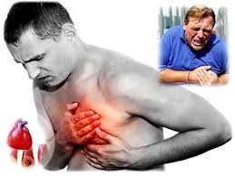 Resultado de imagen de ataque cardiaco animado
