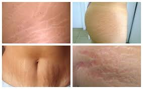 cellulit, cellulite, cellulitis, cellulitis treatment