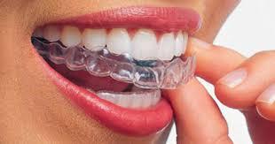 Risultati immagini per ortodonzia invisibile