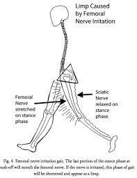 walking disorders how nerve and joint injuries change gait femoral nerve stretch gait the stride is reduced when the femoral nerve is under compression or inflammation as the further the hip is extended