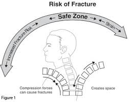 <b>Protecting</b> Your <b>Spine</b> - National Osteoporosis Foundation