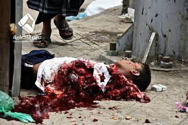 Image result for yemen war photos