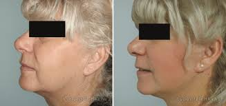 Image result for hifu facelift before and after