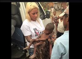 Resultado de imagen para Hope, el bebé brujo desnutrido y deshidratado