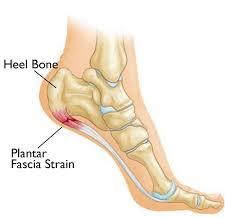<b>Plantar Fasciitis</b> and <b>Bone Spurs</b> - OrthoInfo - AAOS