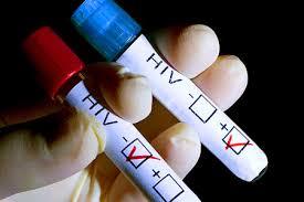Imagini pentru infectie hiv