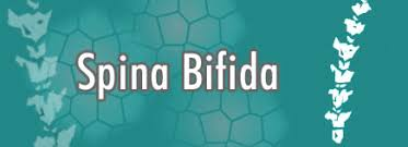 Image result for spina bifida pictures