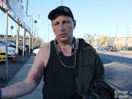 Image result for 50 year old man attacked in chicago