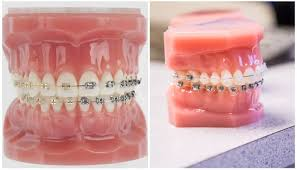 <b>Ортодонтический воск</b> для <b>брекетов</b>