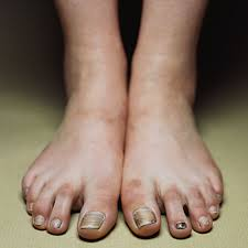 Image result for ugly women's feet
