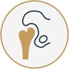 <b>Iowa</b> Orthopedics | Orthopedic Surgeons | Orthopedic Physician