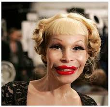 Image result for bad cosmetic surgery