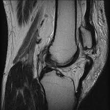 Image result for MRI images gif