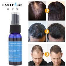 <b>30ML</b> Liquid Hair Fast Growth <b>Ginger</b> Essence Oil Nourishing Hair ...