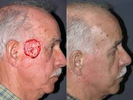 Facial Reconstructive Surgery - New York - Mohs Reconstructive Surgery - Mohs Reconstruction - Skin Cancer Reconstructive Surgery - Birth Defect ... - Face%2520Reconstructive%2520Surgery%252026