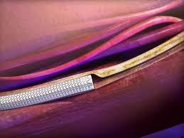 GORE® VIABAHN® Endoprosthesis | Gore Medical