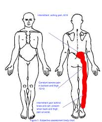 Acute lower back pain   Surrey Physio