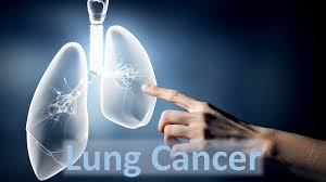 lung cancer causes and solutions lung cancer causes and solutions